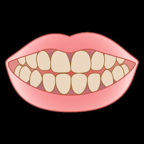 歯茎と歯の境目が黒いのが気になる