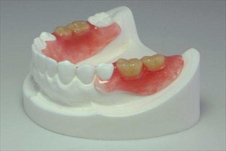 若い方にもおすすめの目立たない入れ歯「ノンクラスプデンチャー」