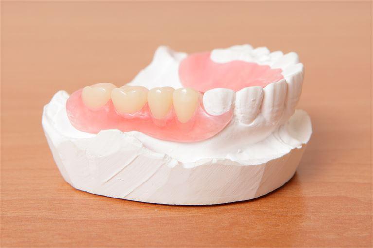 保険の入れ歯・保険外(自費)の入れ歯の違い