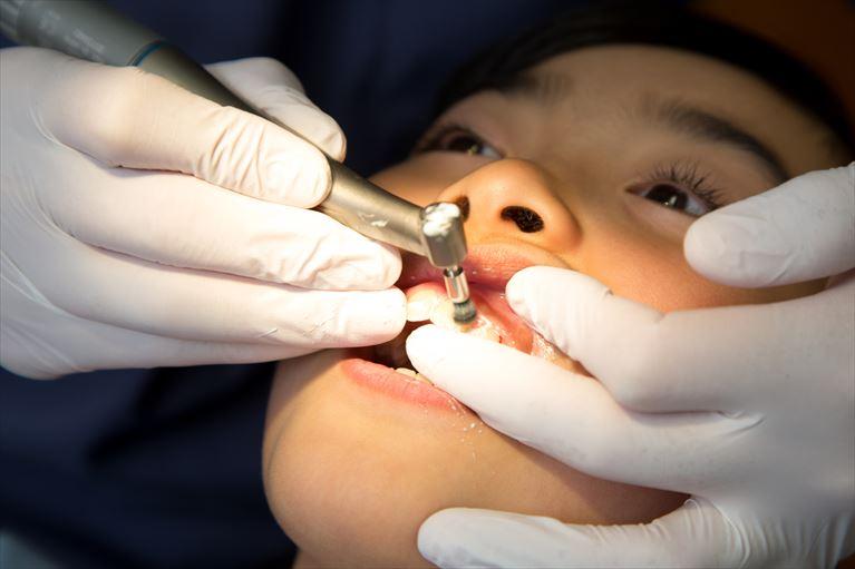 歯石取り(歯石除去)・歯のクリーニング