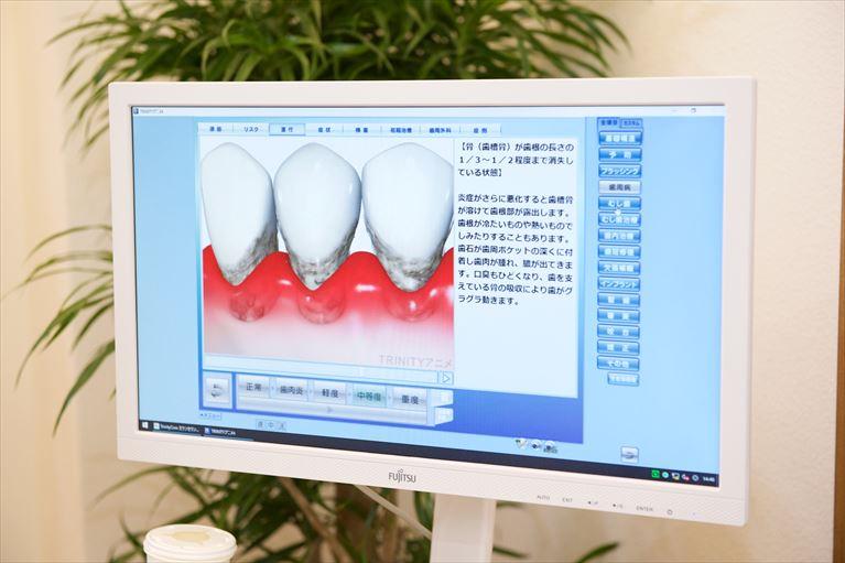 このような症状が1つでもある方は、歯周病かもしれません