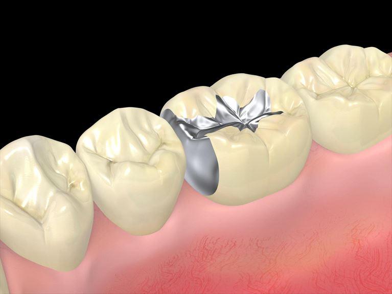 特に詰め物・被せ物の境目は虫歯になりやすい