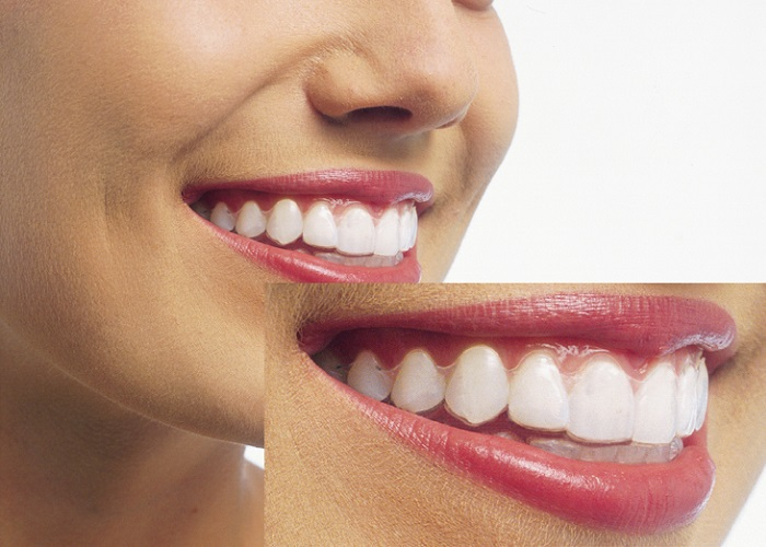 おすすめ① 目立たない装置で前歯の歯並びを治せる